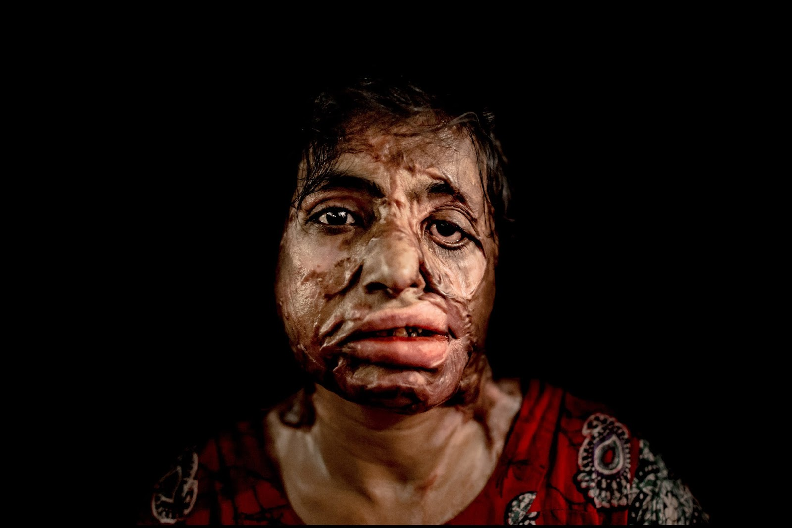 Free Treatment of Acid Attack Victims: The SC Verdict