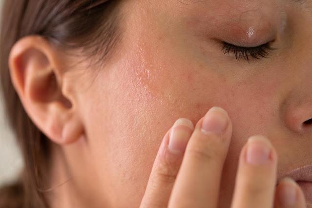 Masques hydratants naturels pour soigner les peaux sèches