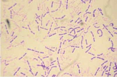 Gram stain of Kingella kingae illustrating the plump bacilli in chains. Compare with the other members of the HACEK group (1000×).