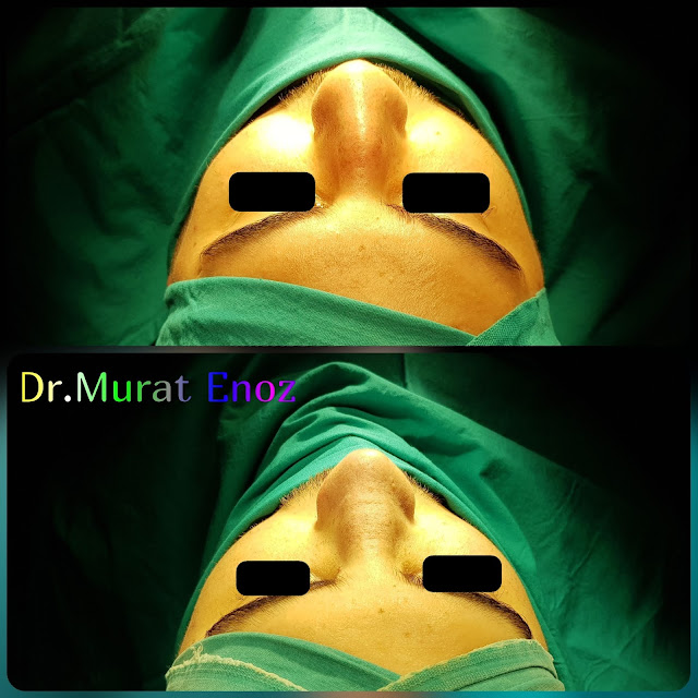 Rhinoplasty in men Istanbul, Male nose job Turkey. Nose aesthetic surgery for men