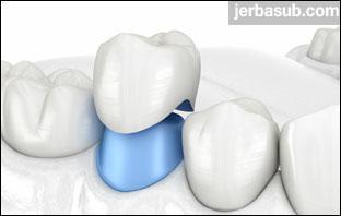 افضل دكتور تلبيس اسنان بالرياض