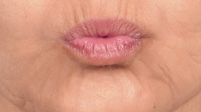 Vertical lip lines
