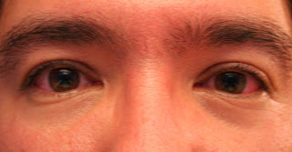 What are red eyes and how can you treat it?