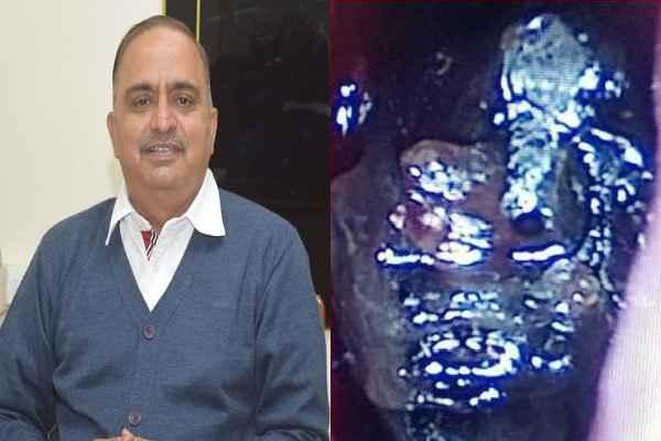 black-fungus-treatment-in-faridabad-dr-randeep-poonia-cmo