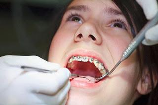 Niềng răng không mắc cài có những tính chất gì?