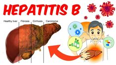 Treatment Drugs for Hepatitis Conditions of Livewr