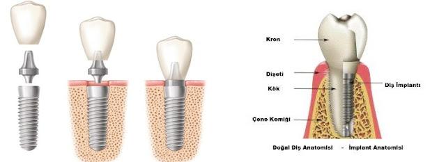 dis implant