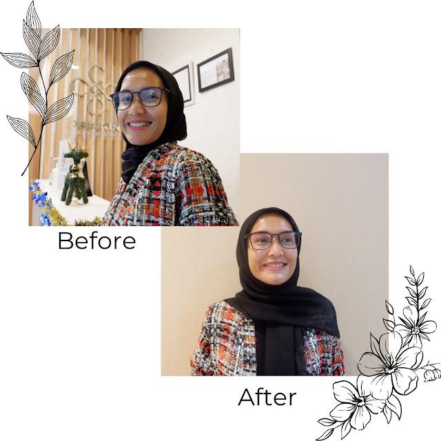 Treatment Glowing Facial di Oriskin Ekalokasari Bogor