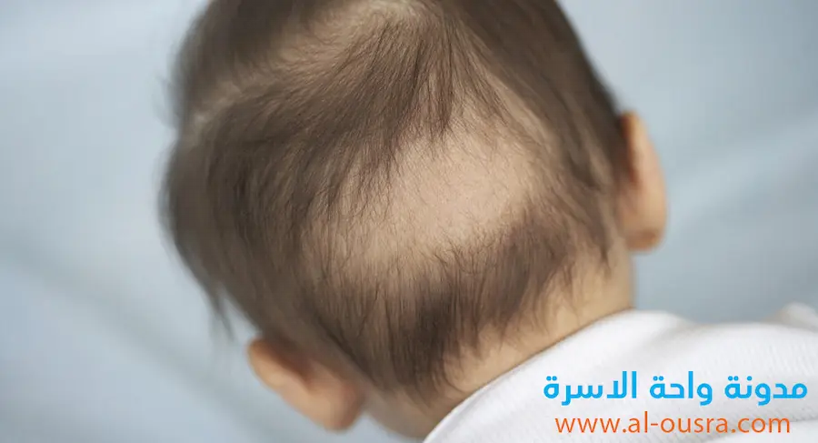 اسباب تساقط الشعر عند الاطفال