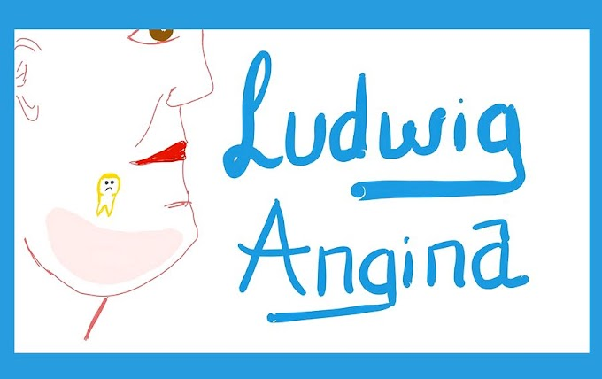 LUDWIG ANGINA: Causes, Clinical Picture, Diagnosis and Management