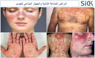 أمراض المناعة الذاتية والجهاز المناعي للجسم
