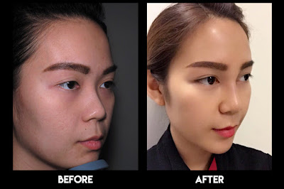 Before and after 3D Nose Lift