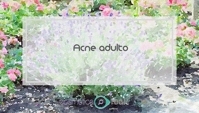 Acne Adulto