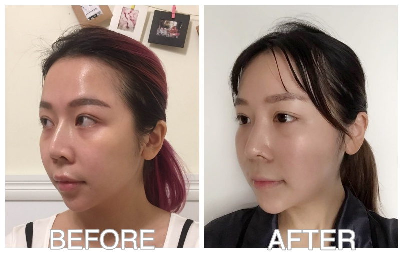 My Plastic Surgery Story In Korea   PART 2   CHENELLE WEN