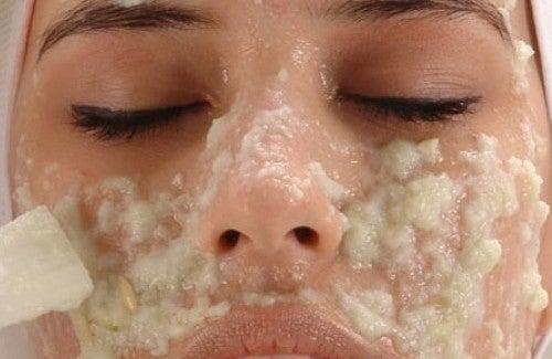 Tự làm kem xóa vết thâm trên da tại nhà