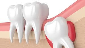 How is tooth decay treated?