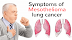Mesothelioma Information: Some Common Questions About Mesothelioma