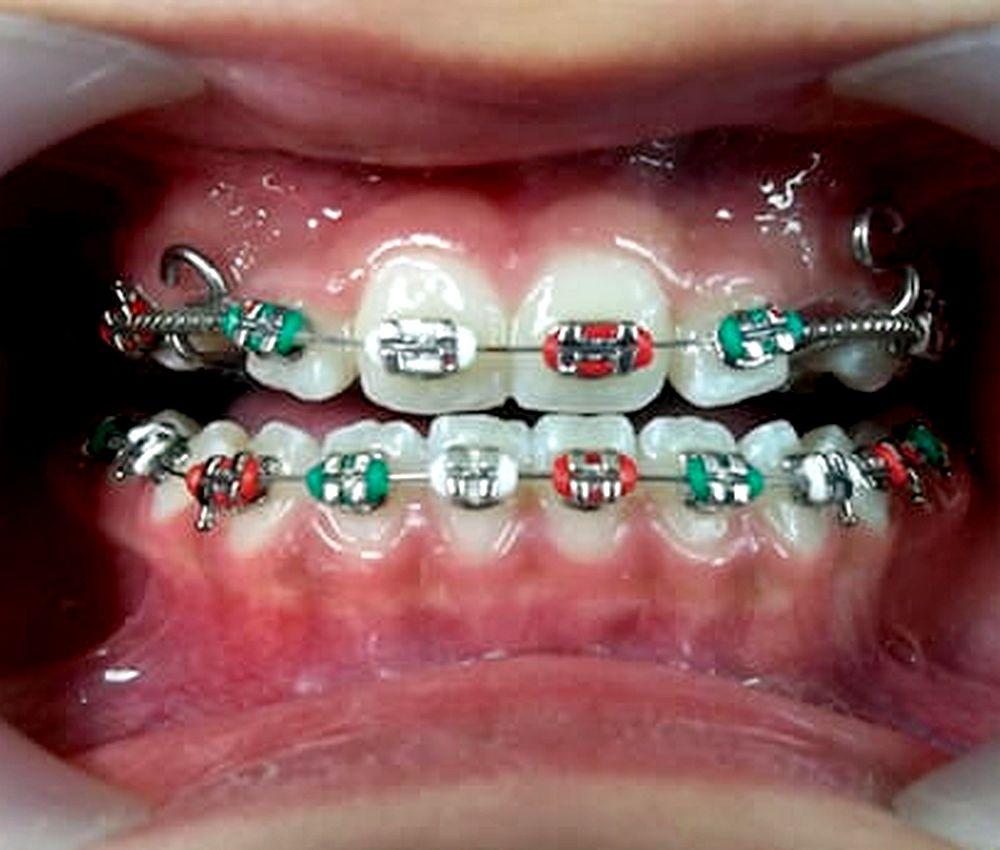 ortodoncia-odontopediatria