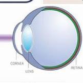 레이저 눈 치료에 대한 설명