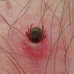 The Two Unknown Tick Diseases That Are Killing Many Chinese