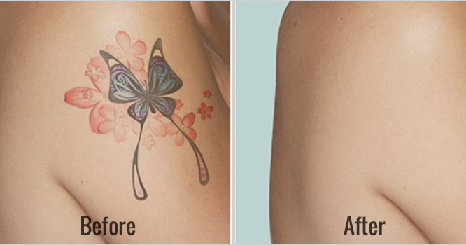 Tattoo removal business start up small business ideas for Tattoo removal business