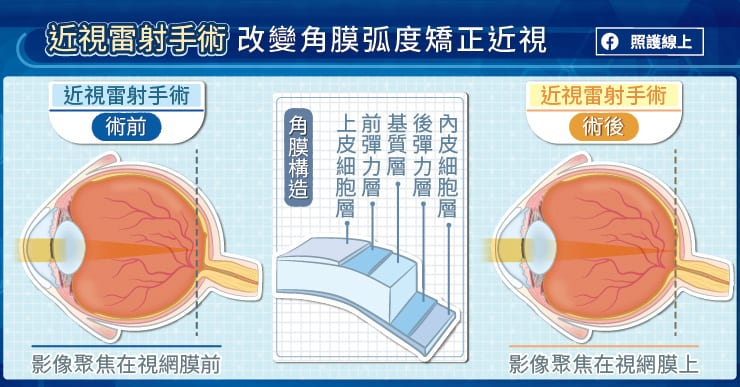 近視雷射手術改變角膜弧度矯正近視