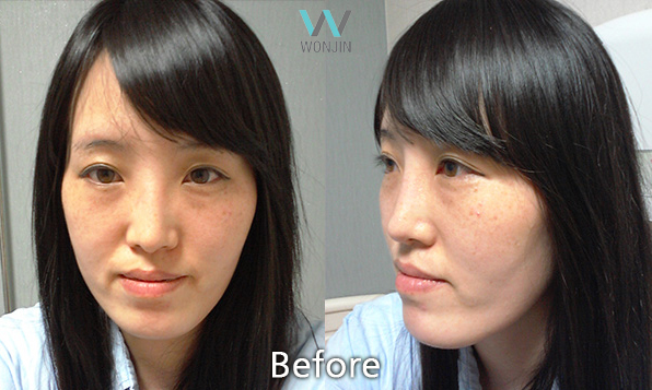 Going to WONJIN Plastic Surgery in Gangnam for Korean Two Jaw Surgery!