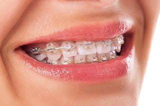 Beberapa Manfaat dan Resiko Menggunakan Kawat Gigi