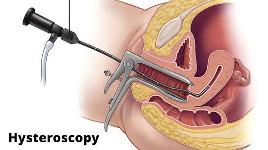 Hysteroscopy for uterine fibroid
