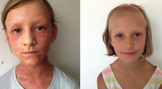 THIS MOTHER CURED HER DAUGHTER'S ECZEMA WITH A RAW DIET