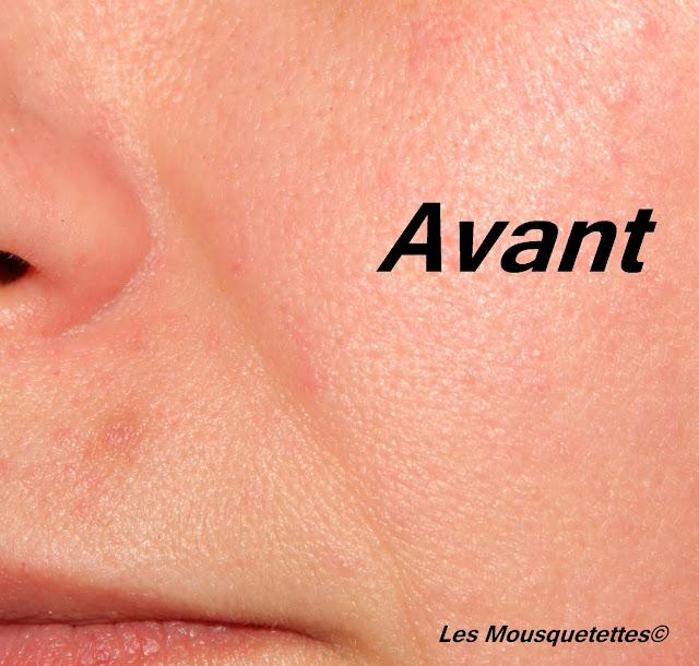 Ride peu profonde du sillon nasal - avant test - Blog Beauté Les Mousquetettes©