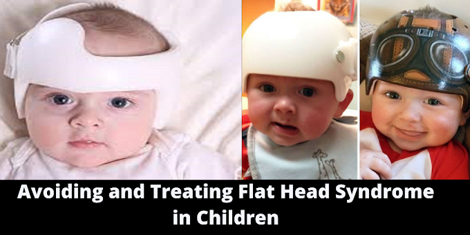Avoiding and Treating Flat Head Syndrome in Children