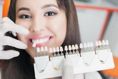 Hati Hati, Strip Pemutih Bisa Membunuh Kolagen di Gigi Anda