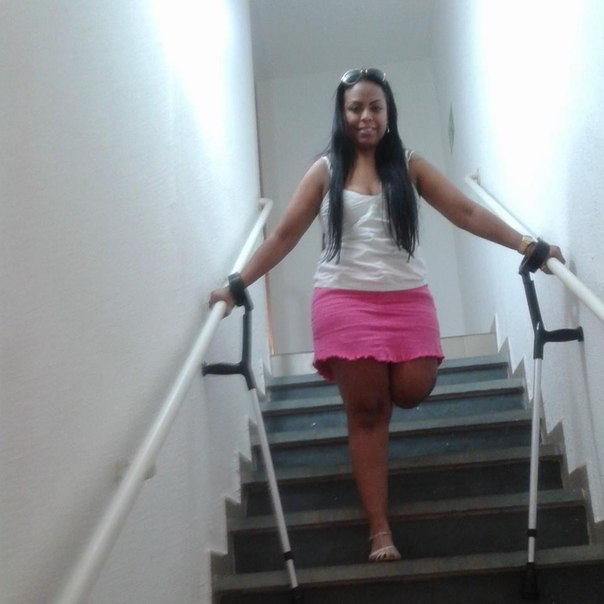 Amputee Beautiful Girl Amputated Leg And Hand :