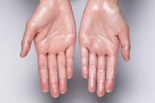 Penyebab utama tangan sering berkeringat, apakah penyakit jantung?