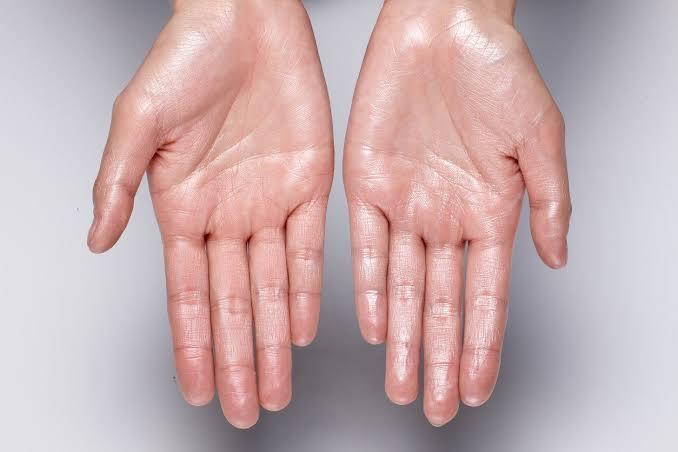 Tangan Sering Berkeringat dan Basah, Apa Penyebab Sebenarnya