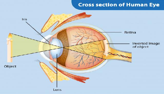 Cara menyembuhkan sakit mata di rumah