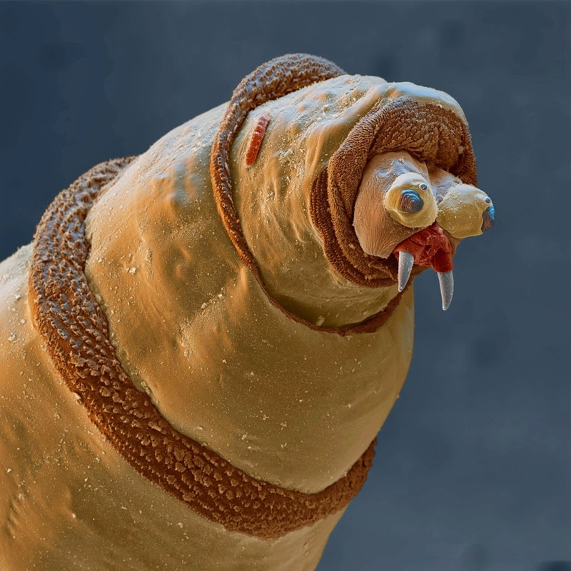 16 Terryfying Images From The Microscope - Maggot