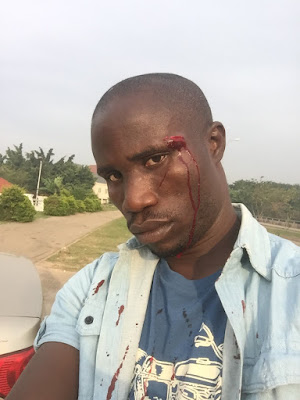 Policeman Injures Man With Pistol After Complaining Of Hitting His Car(Photos)