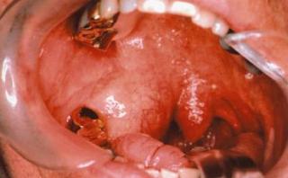 Penyebab Tumor