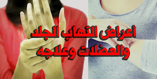 أعراض التهاب الجلد والعضلات وعلاجه