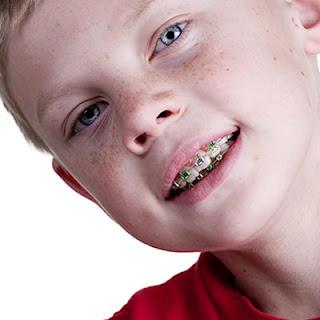 %25C3%25A7cuklarda-ortodonti-dr-dental.j