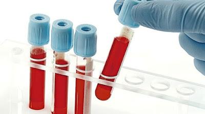 Prefeitura de Registro-SP contrata mais 935 exames laboratoriais e implanta monitoramento sentinela nos profissionais de saúde