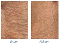 Swiss Clinic seerumi mikroneulaus ennen ja jälkeen