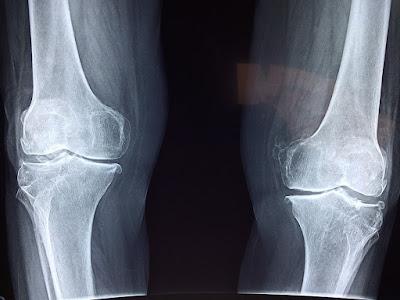 Pahami dan atasi osteoarthritis pada lutut