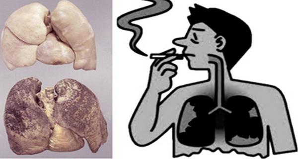 fumatorii isi pot curata plamanii prin alimentatie si suplimente alimentare