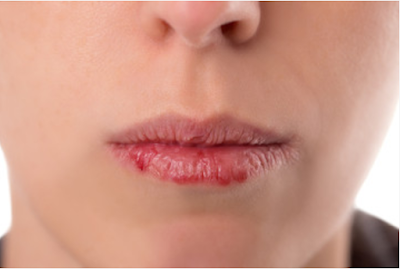 How to cope with cracked lips naturally