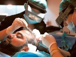 Repair a Bad Hair Transplant