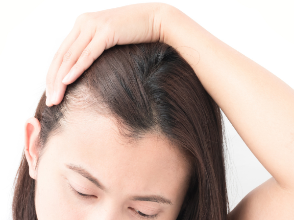 how to cover bald patches