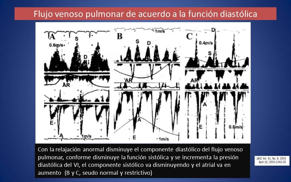 Normal flujo venoso